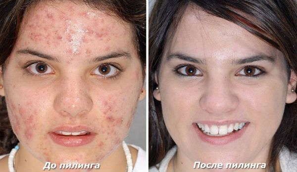 Хмический пилинг для коррекции кожи лица фото