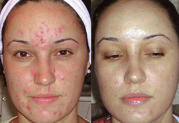 Хмический пилинг для коррекции и регенерации кожи лица фото