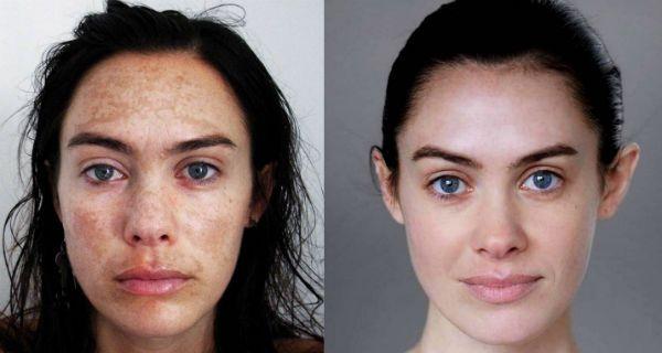 Хмический пилинг для коррекции и регенерации глубоких слоев кожи лица фото