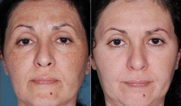 Хмический пилинг для коррекции и регенерации глубоких слоев кожи лица до и после фото