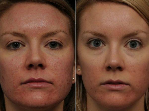 Качественный лазерный пилинг лица до и после фото