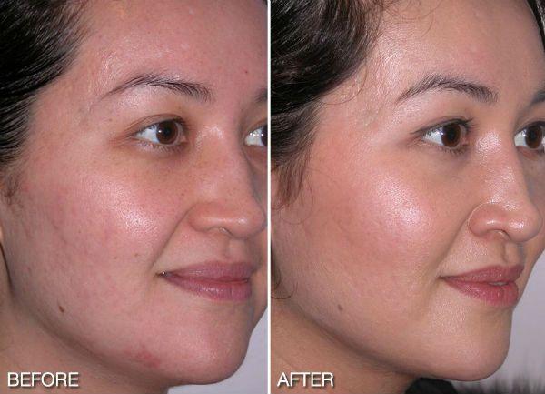Ультразвуковой пилинг для заметного омоложения лица до и после фото