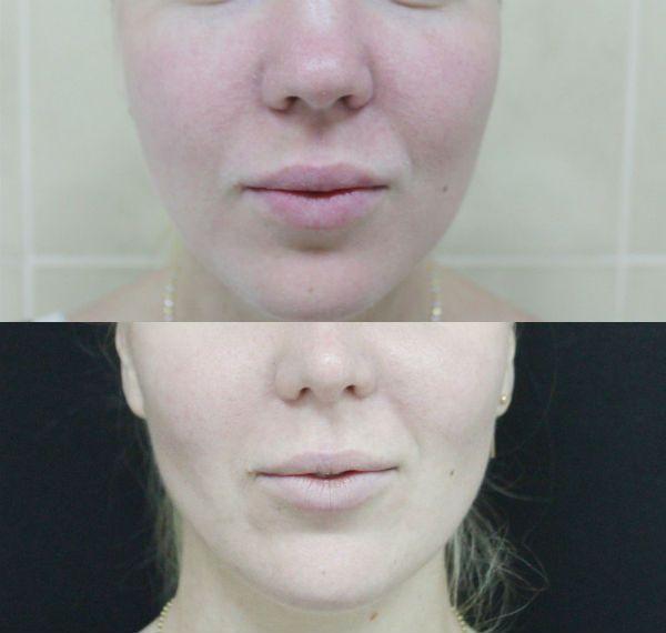 Удаления жира из-под кожных покровов лица фото