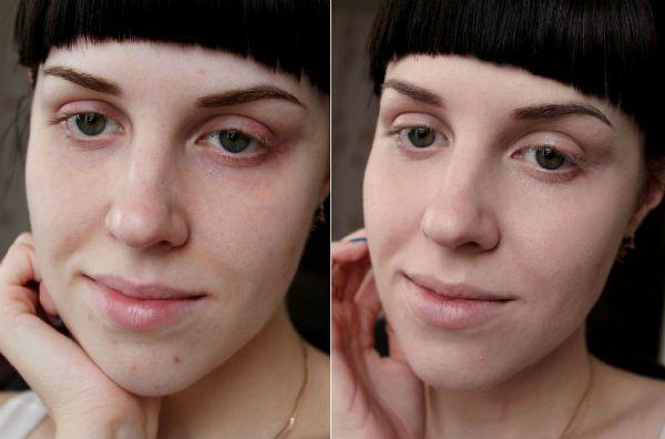 Поверхностный пилинг для коррекции кожи фото