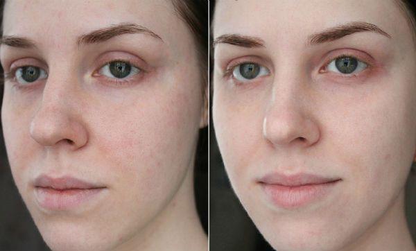 Поверхностный пилинг для коррекции кожи лица фото