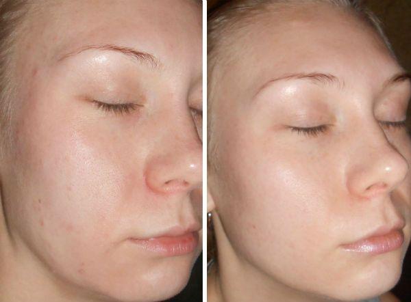 Поверхностный пилинг для коррекции кожи лица в домашних условиях фото
