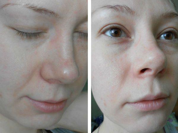 Поверхностный пилинг для коррекции кожи лица в домашних условиях до и после фото