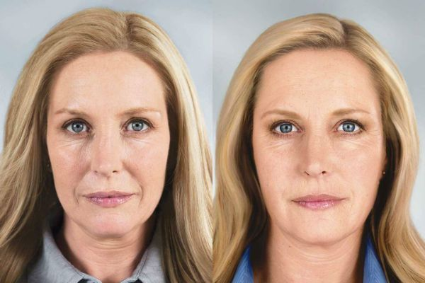 Ретиноловый пилинг для отшелушивания и регенерации эпидермиса лица фото