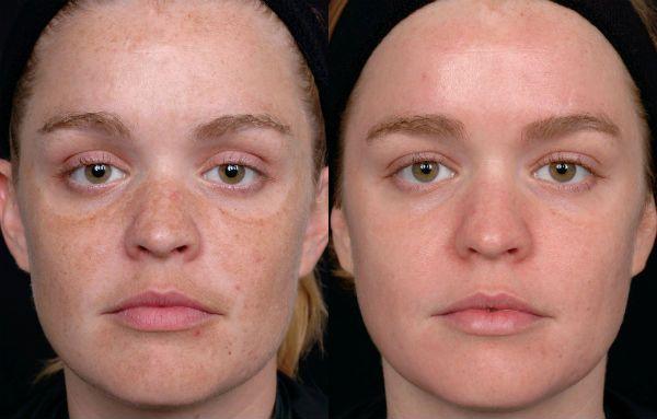 Ретиноловый пилинг для отшелушивания и регенерации эпидермиса лица до и после фото