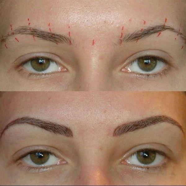 Волосковый метод фото