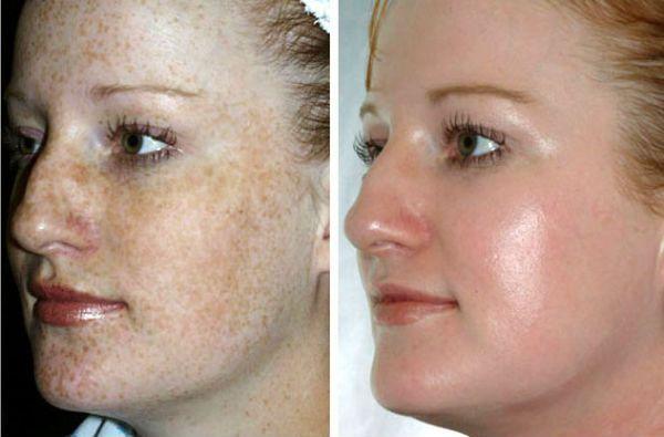 Срединный пилинг для коррекции и омоложения кожи фото