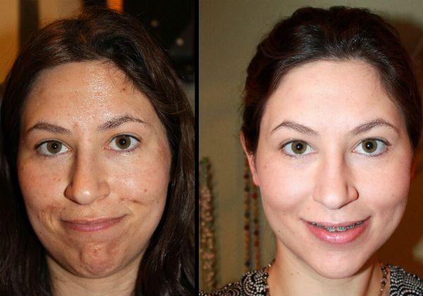 Срединный пилинг для коррекции и омоложения кожи лица фото