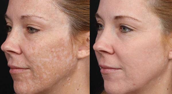 Срединный пилинг для коррекции и омоложения кожи лица до и после фото