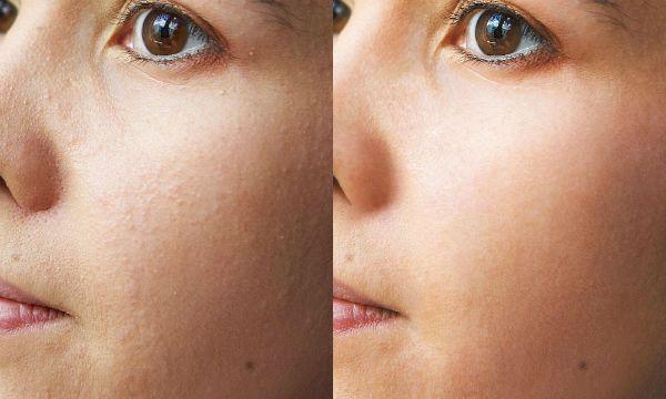 Коррекция кожи фото