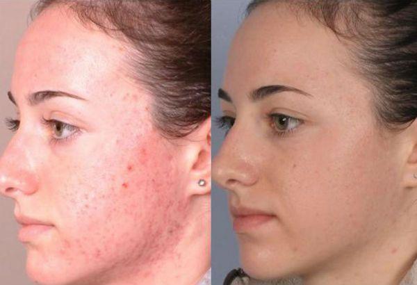 Желтый пилинг для коррекции кожи лица фото