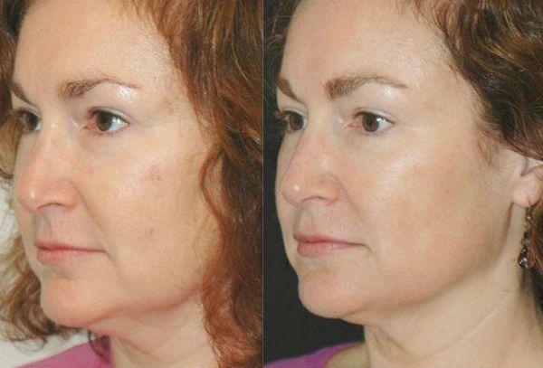 Желтый пилинг для коррекции и улучшения лица фото