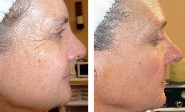 Желтый пилинг для коррекции и улучшения кожи лица фото