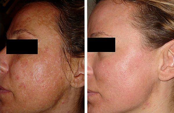 Желтый пилинг кожи лица фото