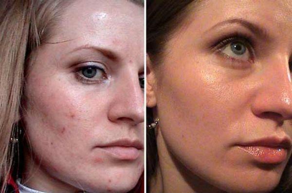 Желтый пилинг для коррекции и улучшения кожи лица до и после фото