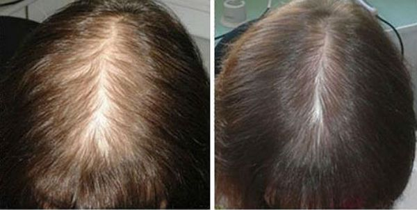 Биотин для волос фото