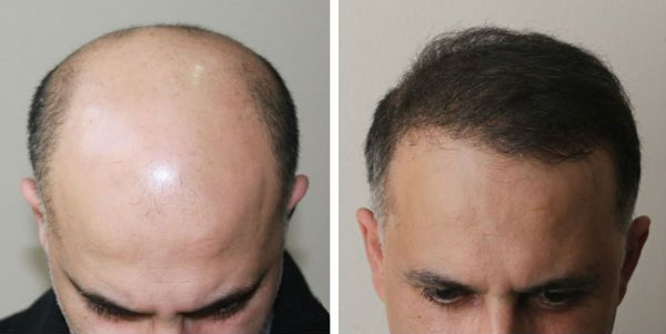 Фотография применения биотина для волос
