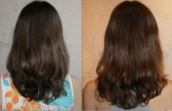 Рост волос после приема биотина фото
