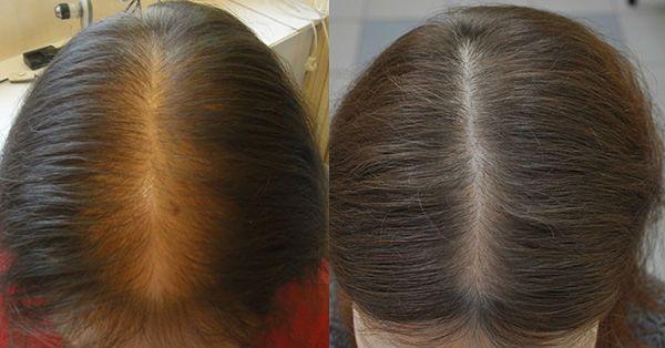 Биотин для волос лечение алопеции фото