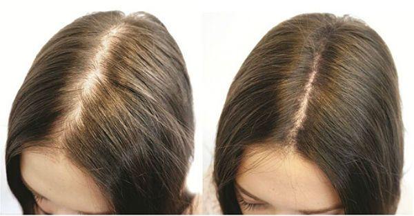 До и после применения биотина для волос фото