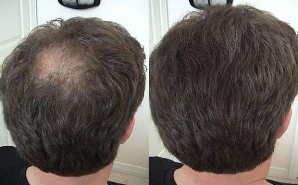 Результат приема биотина для волос фото