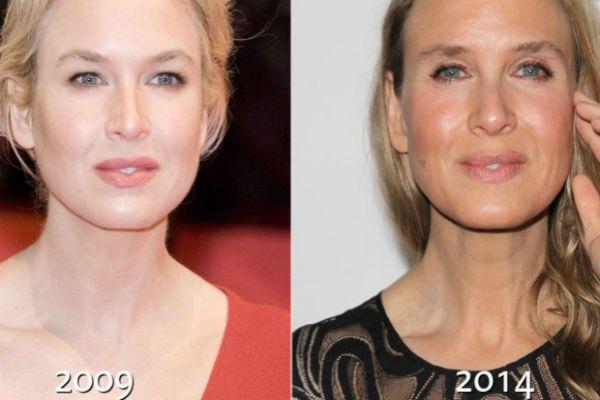 Рене Зеллвегер до и после операций по пластике фото
