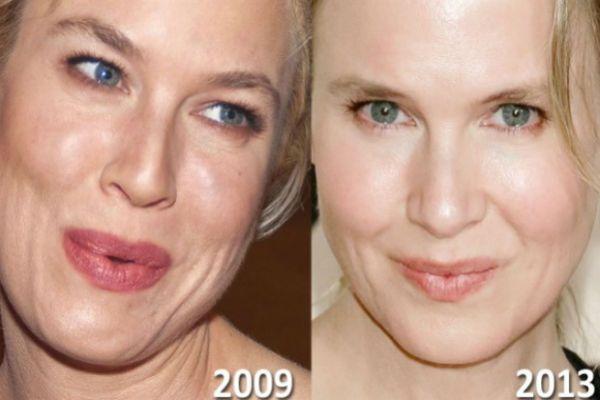 Изменения актрисы фото