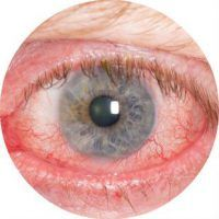 Красный глаз причины и лечение