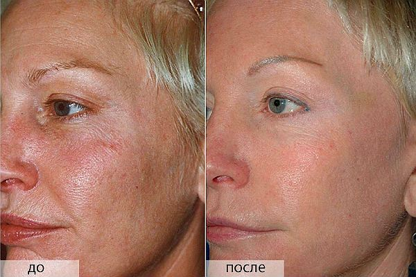 Химический пилинг кожи лица фото