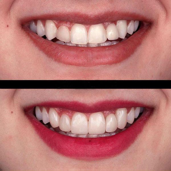 Исправление формы зубов винирами фото