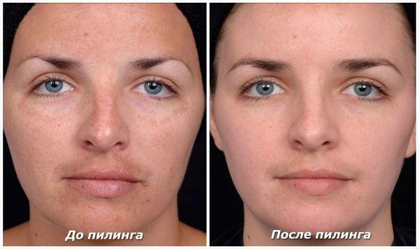 Пилинг кожи лица кислотами фото