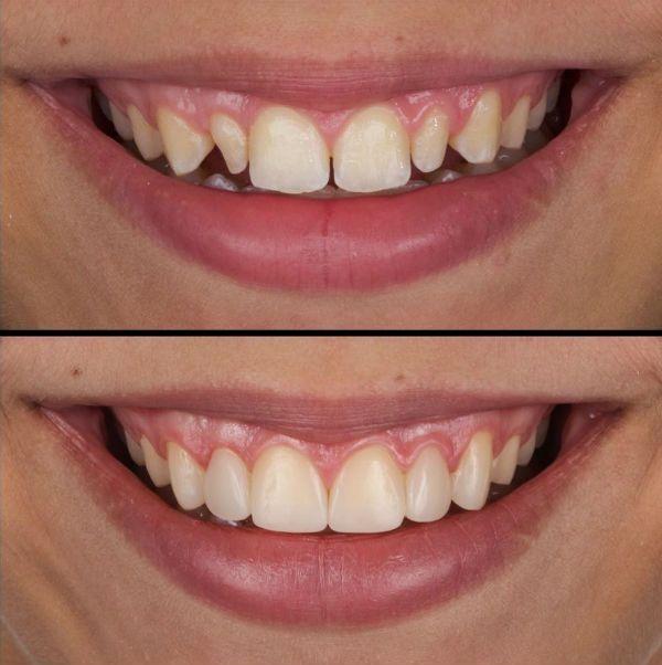 Реставрация формы зубов винирами фото