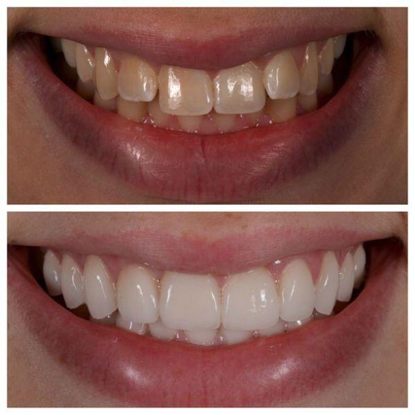 Виниры на зубы фото