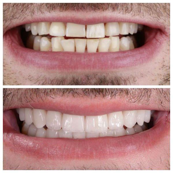 Виниры в стоматологии фото