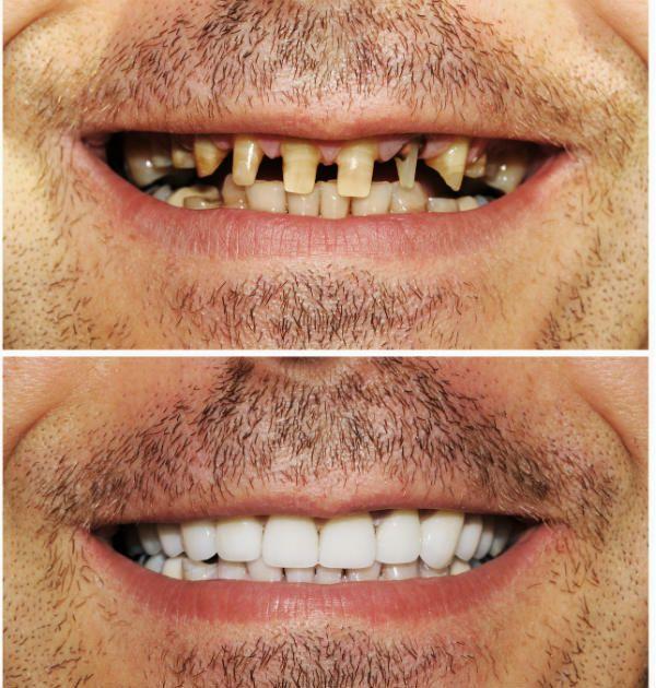 Виниры восстановление зубов фото