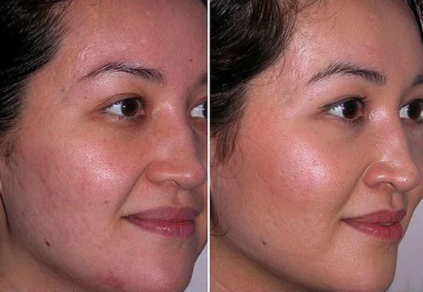 Дарсонваль лица фото до и после