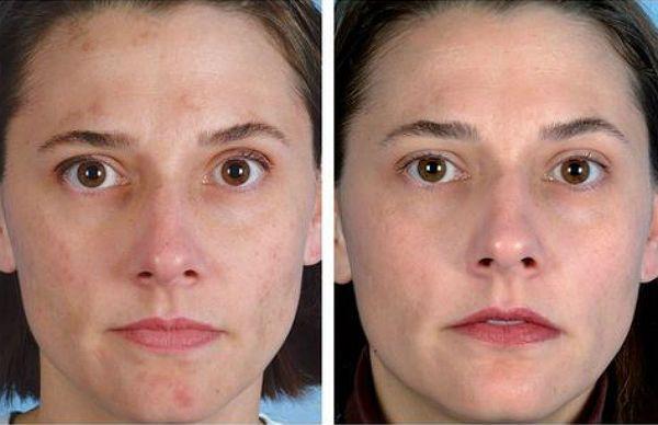 Дарсонвализация лица фото до и после