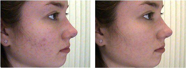 Применение дарсонваля для лица фото
