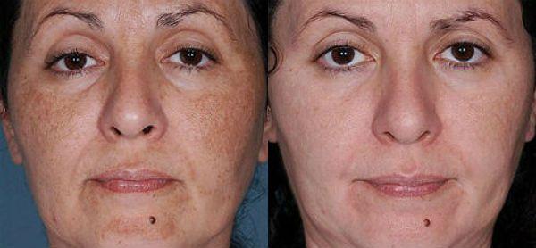 Процедура дарсонваль для лица фото