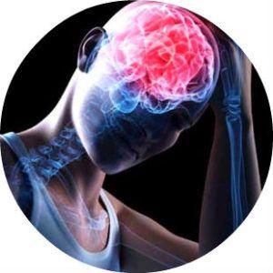 Сотрясение головного мозга фото