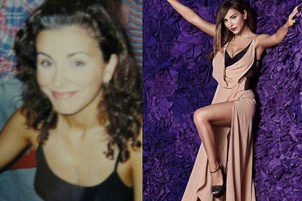 Ани Лорак фото до и после пластики