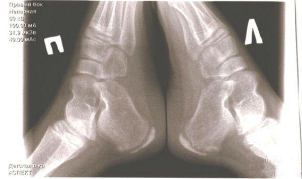Болезнь Шинца рентген фото