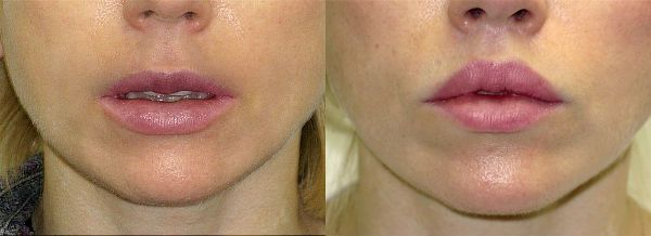 Булхорн фото до и после