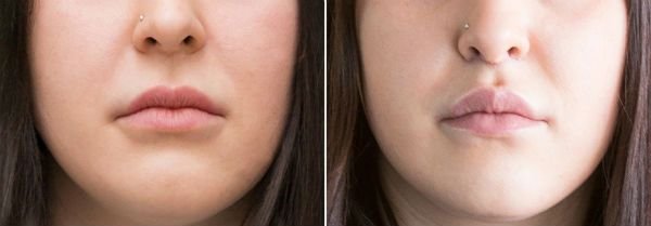 Фото до и после процедуры булхорна