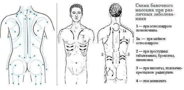 Кинетический метод вакуумного массажа фото