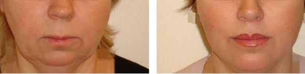 Пластика верхней губы фото